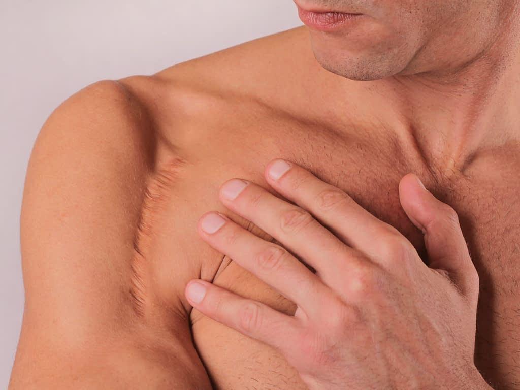 Littekenweefsel kan beperking in bijvoorbeeld de schouder opleveren