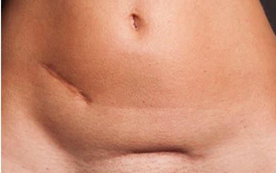 Na een keizersnede kan littekenweefsel voor bewegingsbeperkingen en bijvoorbeeld rugklachten zorgen. Littekenweefseltherapie kan dit verhelpen.